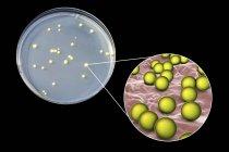 Micrococcus luteus bacteria en la superficie del medio nutriente en Petri plato . - foto de stock
