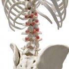 Ilustración digital realista que muestra artritis en la columna vertebral humana . - foto de stock