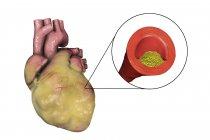 Ilustración digital de corazón graso y arteria coronaria estrechada por placa grasa . - foto de stock