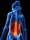 Silueta de cuerpo femenino con dolor de espalda, ilustración digital conceptual . - foto de stock
