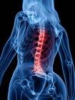 Silueta de cuerpo femenino con dolor de espalda en vista de ángulo bajo, ilustración digital . - foto de stock