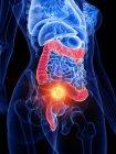 Cáncer intestinal en el cuerpo femenino, ilustración conceptual por computadora . - foto de stock