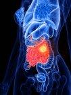 Cáncer de intestino delgado e intestino en el cuerpo femenino, ilustración conceptual por computadora . - foto de stock
