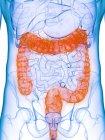 Cuerpo masculino con colon enfermo, ilustración por computadora . - foto de stock