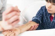 Крупный план иммунолога, выполняющего анализ аллергии на кожные уколы на мальчике . — стоковое фото