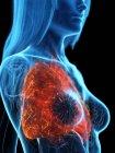 Pulmones enfermos en cuerpo femenino transparente sobre fondo negro, ilustración por computadora . - foto de stock