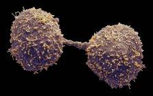 Dividir las células cancerosas de la glándula prostática, micrografía electrónica de exploración coloreada . — Stock Photo