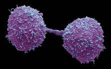 Dividir las células cancerosas de la glándula prostática, micrografía electrónica de exploración coloreada . - foto de stock