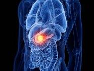 Cáncer de páncreas en el cuerpo masculino, ilustración por computadora . - foto de stock