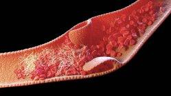 Ilustración informática de un manto sanguíneo dentro de la vena, conocido como trombus venoso.. - foto de stock