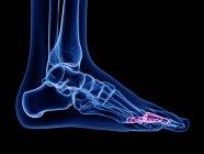 Falange proximal ósea en cuerpo humano transparente, ilustración por ordenador . - foto de stock