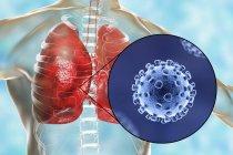 Coronaviruses causing pneumonia, conceptual computer illustration — Stock Photo