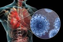 Coronavirus causa polmonite, illustrazione concettuale del computer — Foto stock