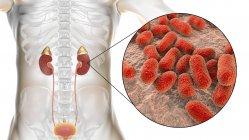 Pielonefritis aguda causada por la bacteria Acinetobacter baumannii - foto de stock