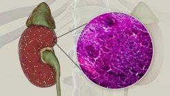 Pielonefritis aguda, ilustración por ordenador y micrografía ligera - foto de stock