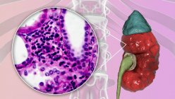 Chronic pyelonephritis, computer illustration and light micrograph — Stock Photo