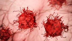 Célula de cáncer de piel, ilustración por computadora. - foto de stock