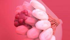 Cáncer de mama. Ilustración del tumor maligno (canceroso) (rojo) en la mama de la mujer - foto de stock