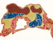 Tejido pulmonar, micrografía electrónica de transmisión coloreada (TEM). Capilar pulmonar que contiene dos glóbulos rojos (rojo) y tres plaquetas (azul). Una membrana basal (rosa) rodea el endotelio que lo separa del epitelio alveolar - foto de stock