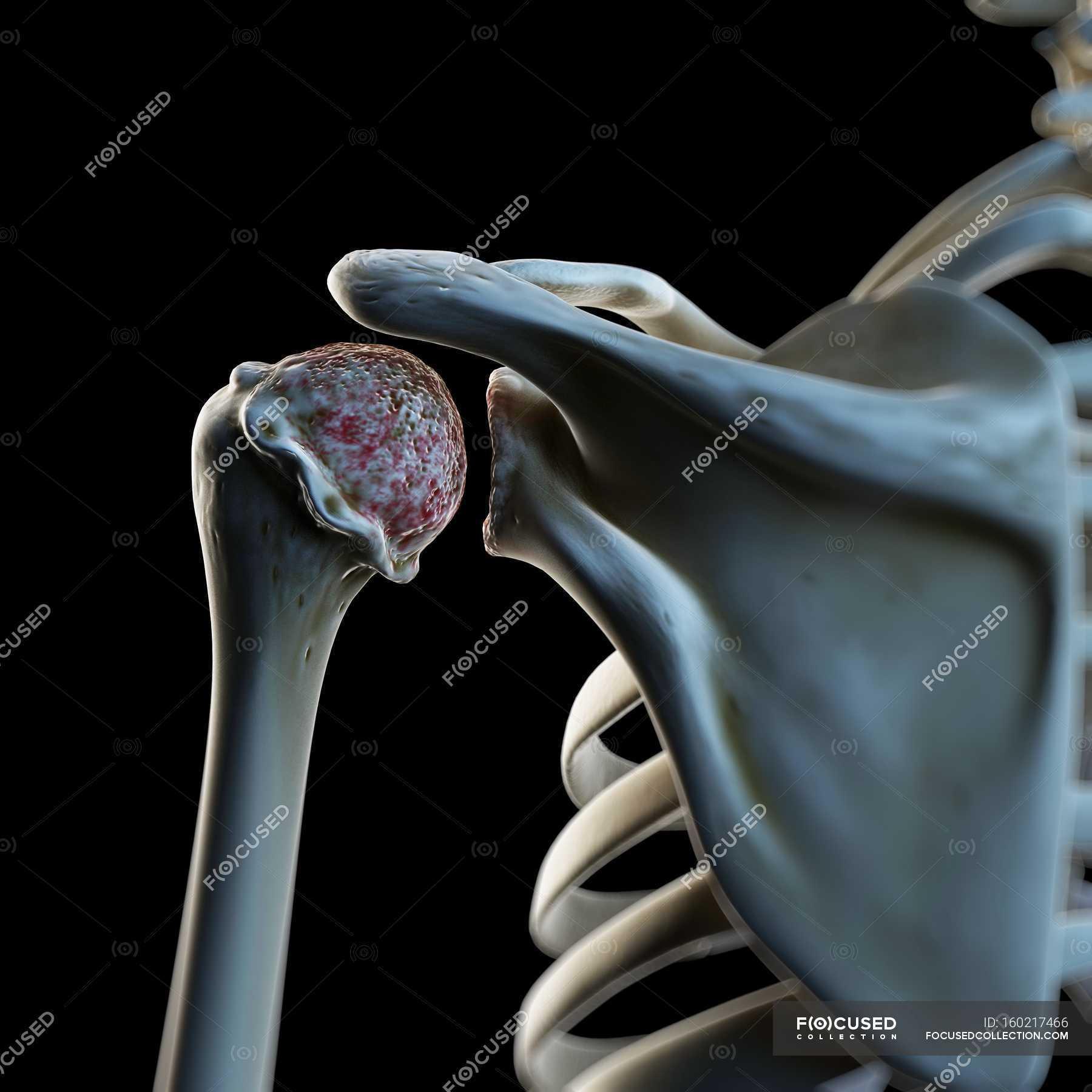 Visuelle Darstellung von arthrotischen Schulter — Stockfoto   #160217466