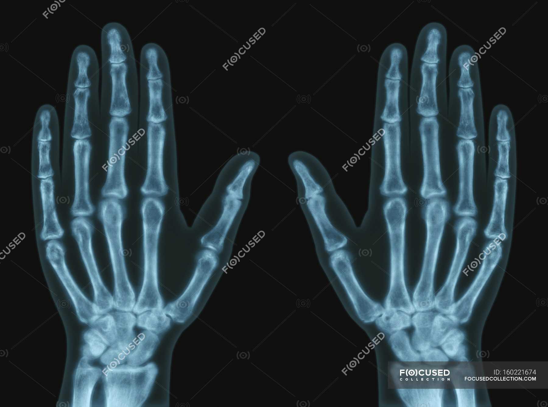 Hand bones anatomy, X-ray. — Stock Photo | #160221674