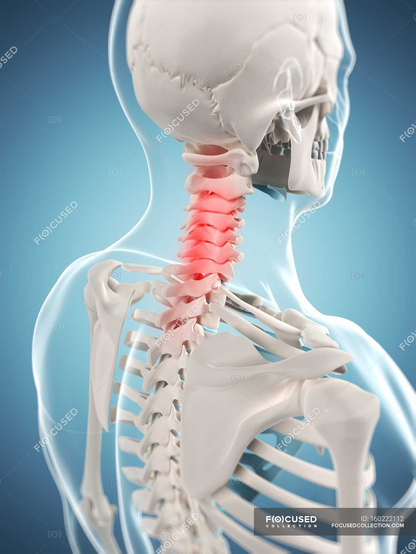 Pain Localized In Cervical Region Of Spine Stock Photo 160222112