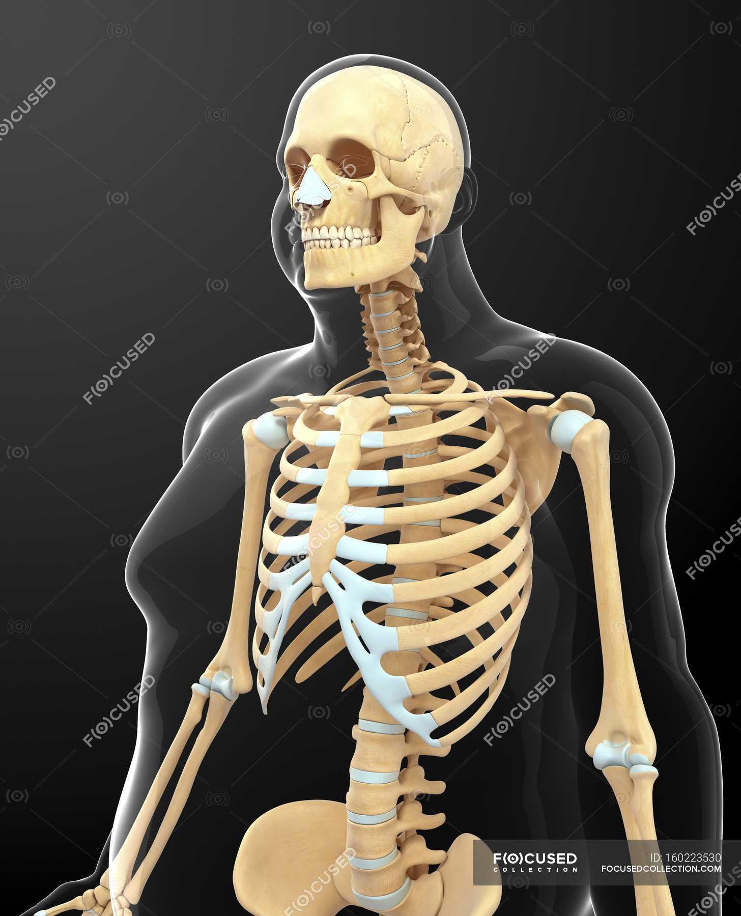Sistema esquelético de la persona obesa - foto de stock | #160223530