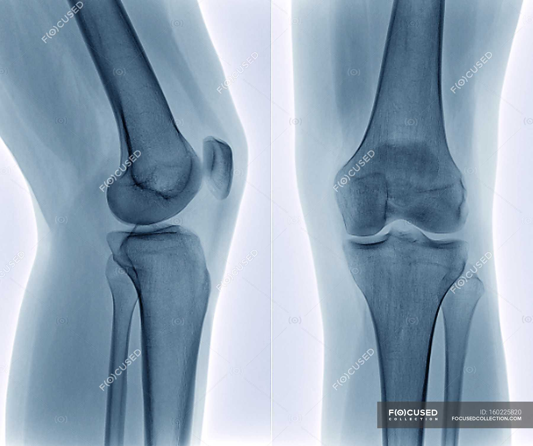 Healthy knee joint anatomy — Stock Photo | #160225820