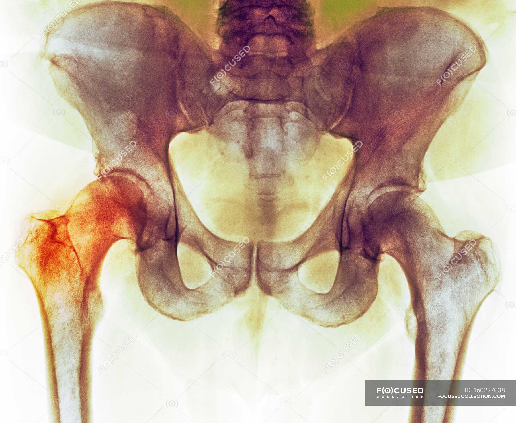 Hip before hip replacement surgery, X-ray — Stock Photo | #160227038