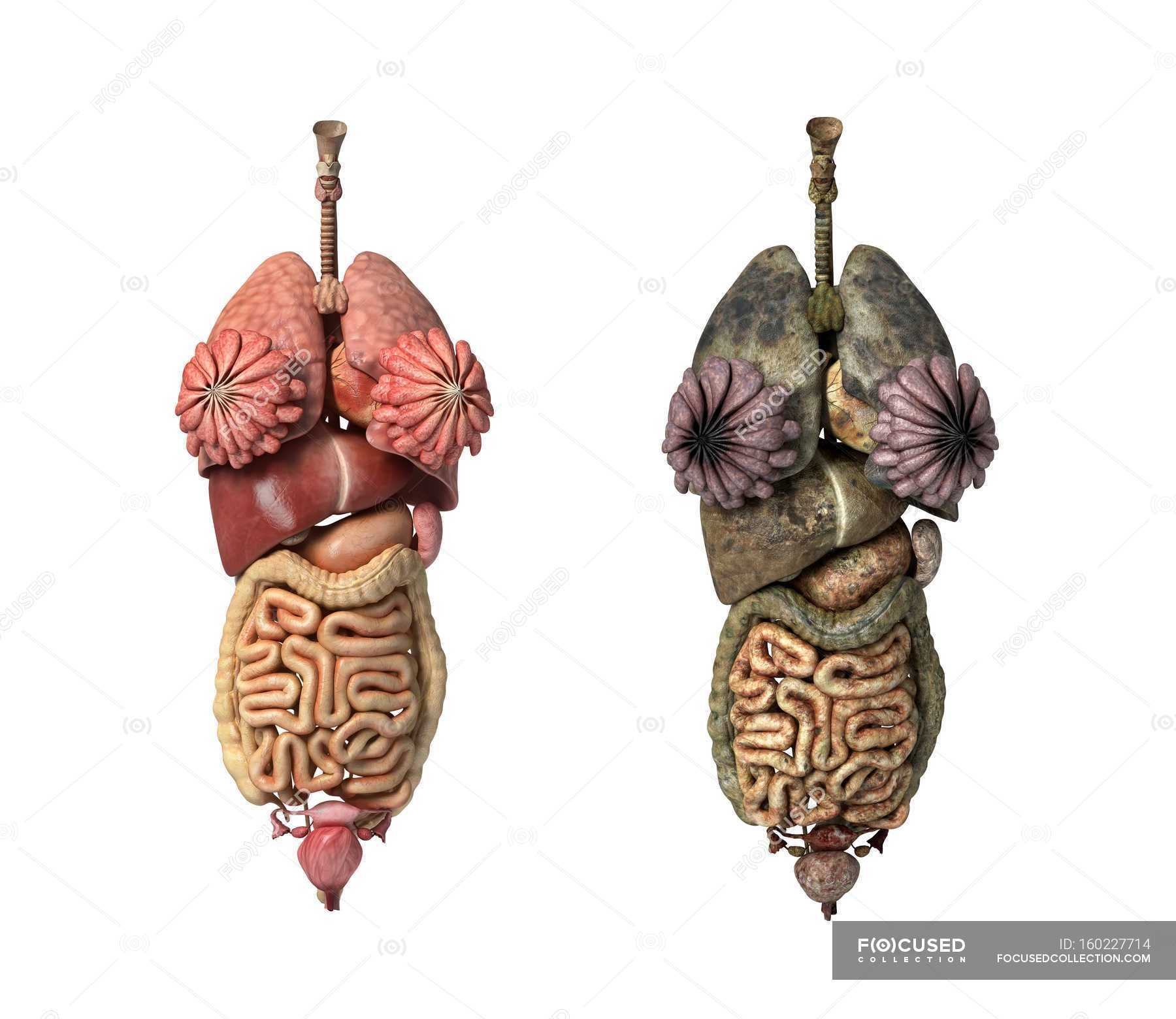 Healthy And Diseased Female Organs Two Objects Human Health