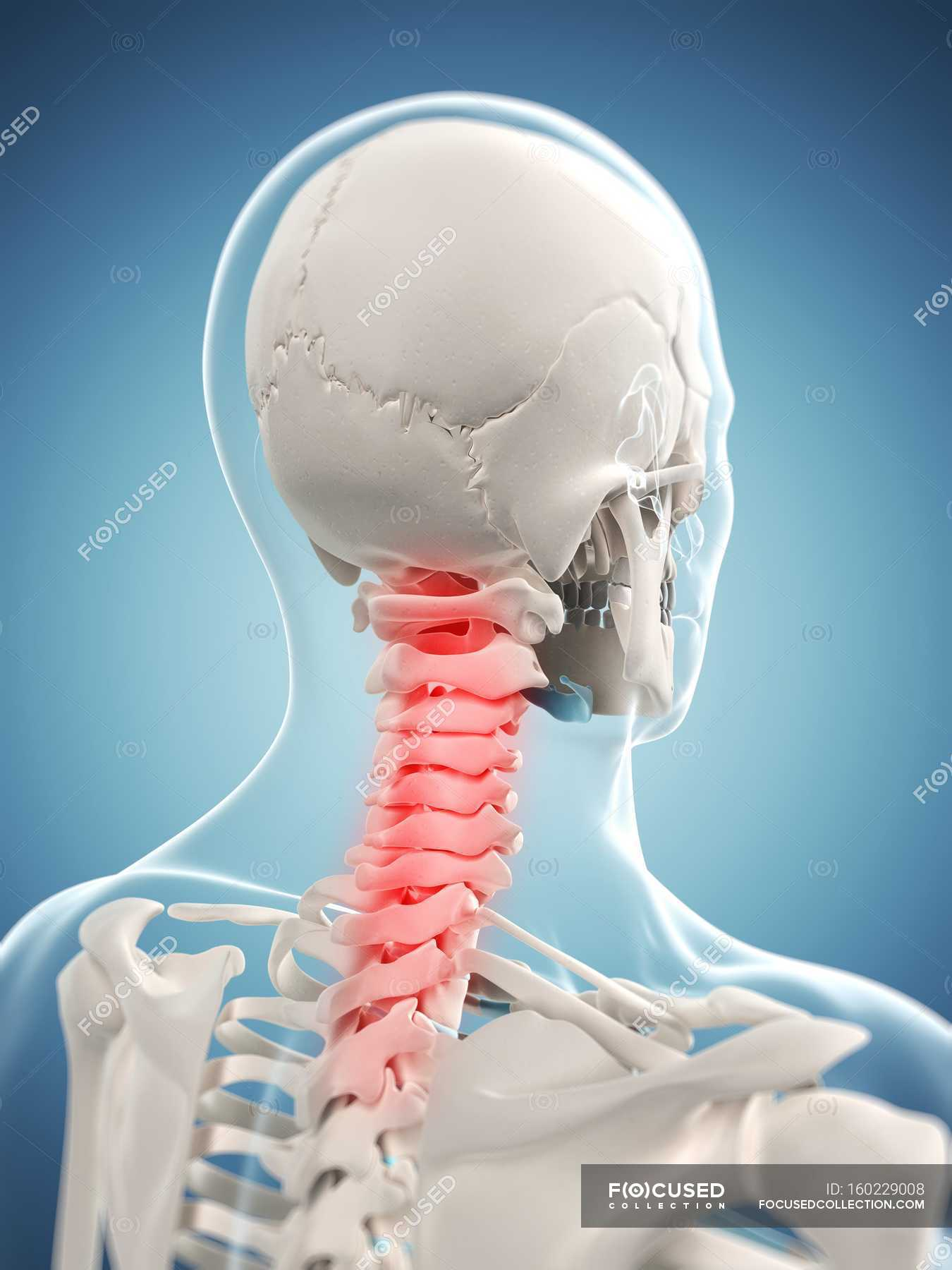 Pain Localized In Cervical Region Of Spine Stock Photo 160229008
