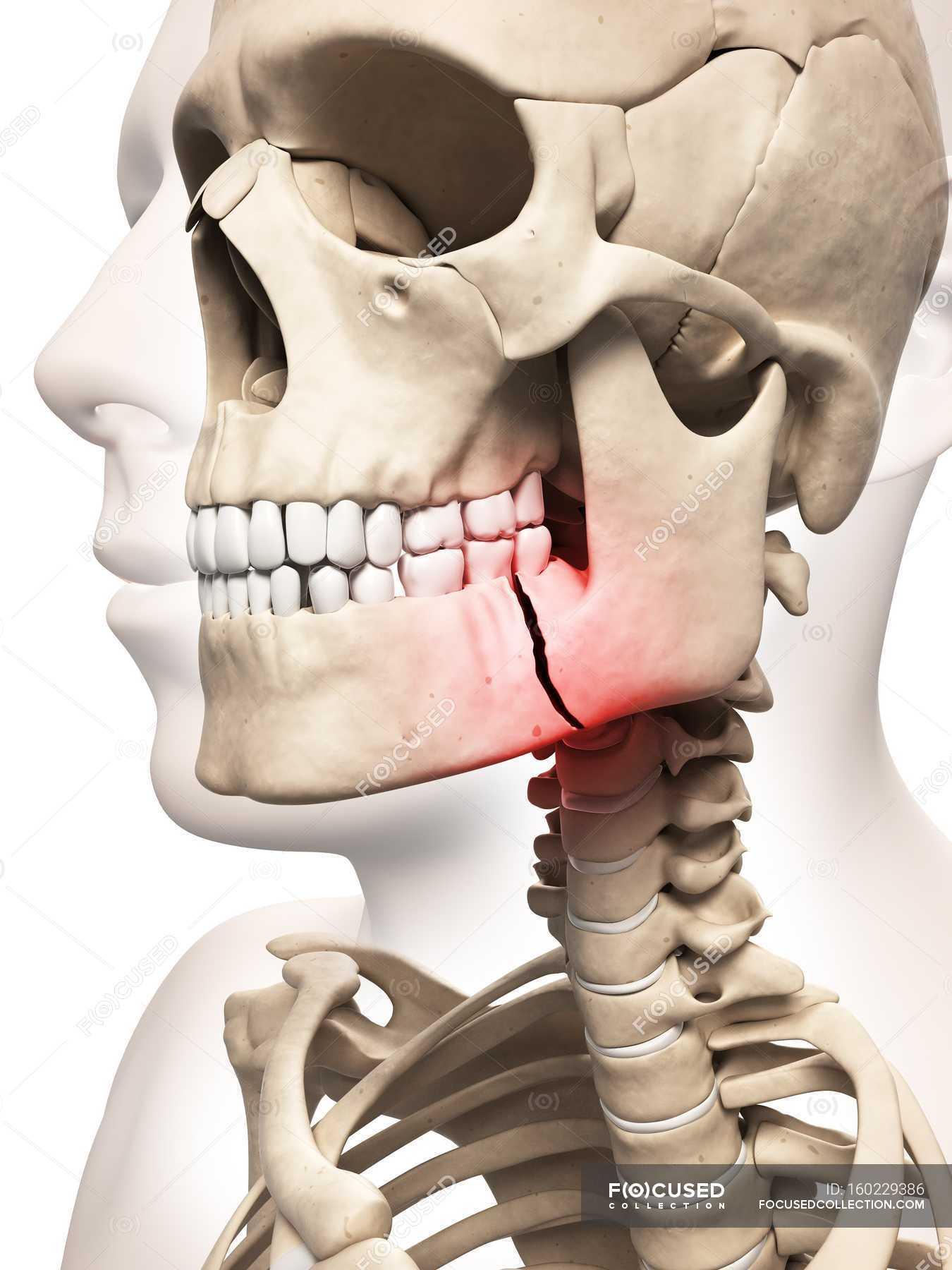 Gebrochener Kieferknochen — Stockfoto | #160229386