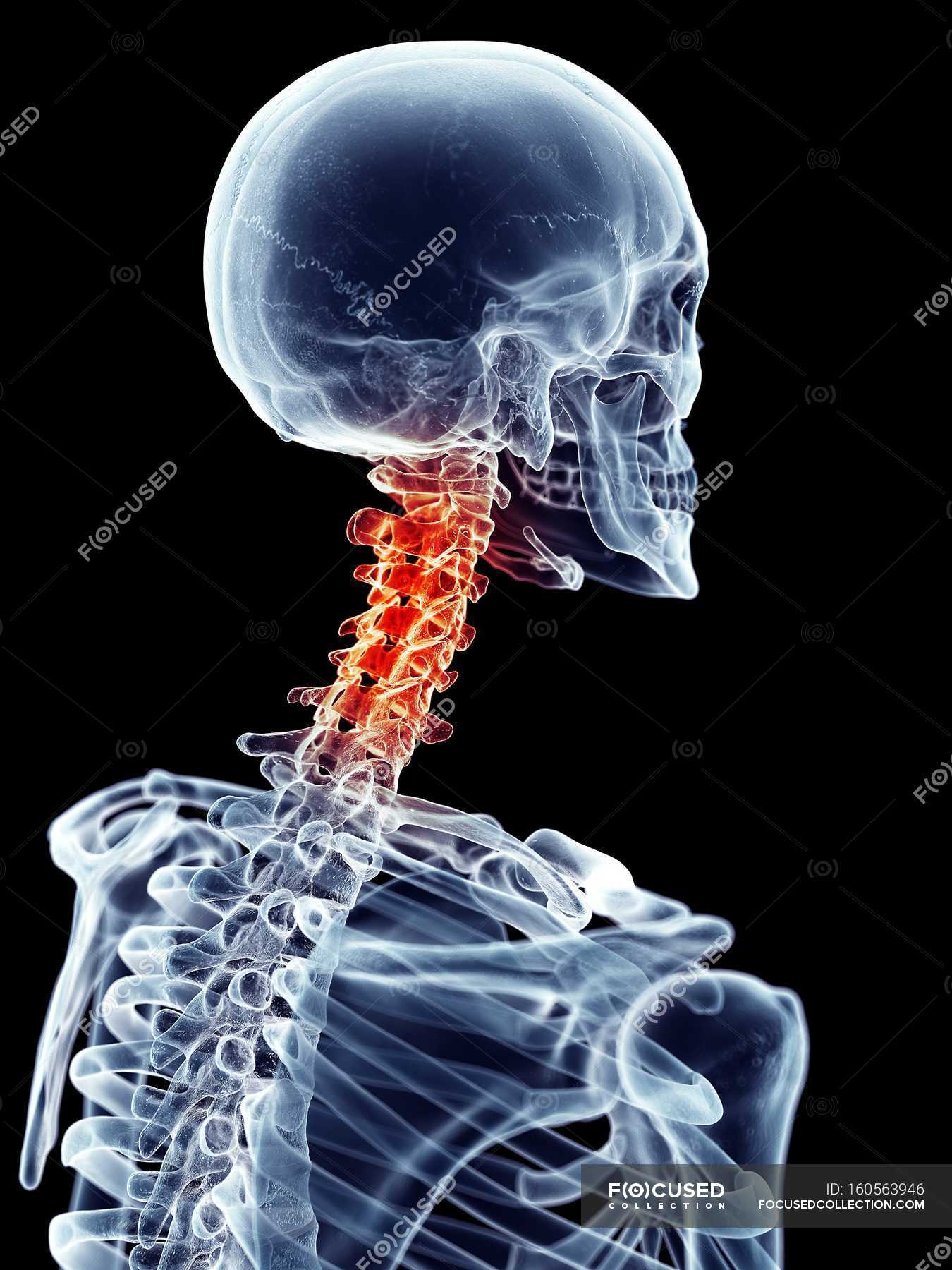 Neck pain localized in cervical vertebrae — Stock Photo | #160563946