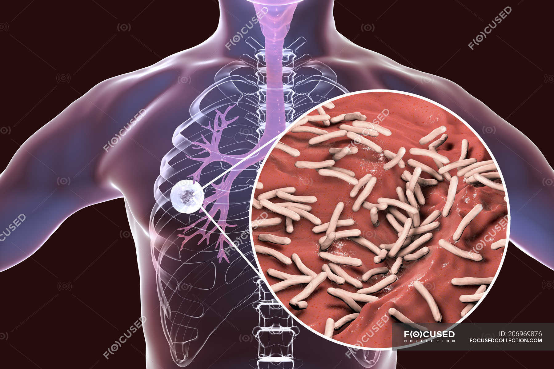 Fibrous Cavernous Pulmonary Tuberculosis And Close Up Of