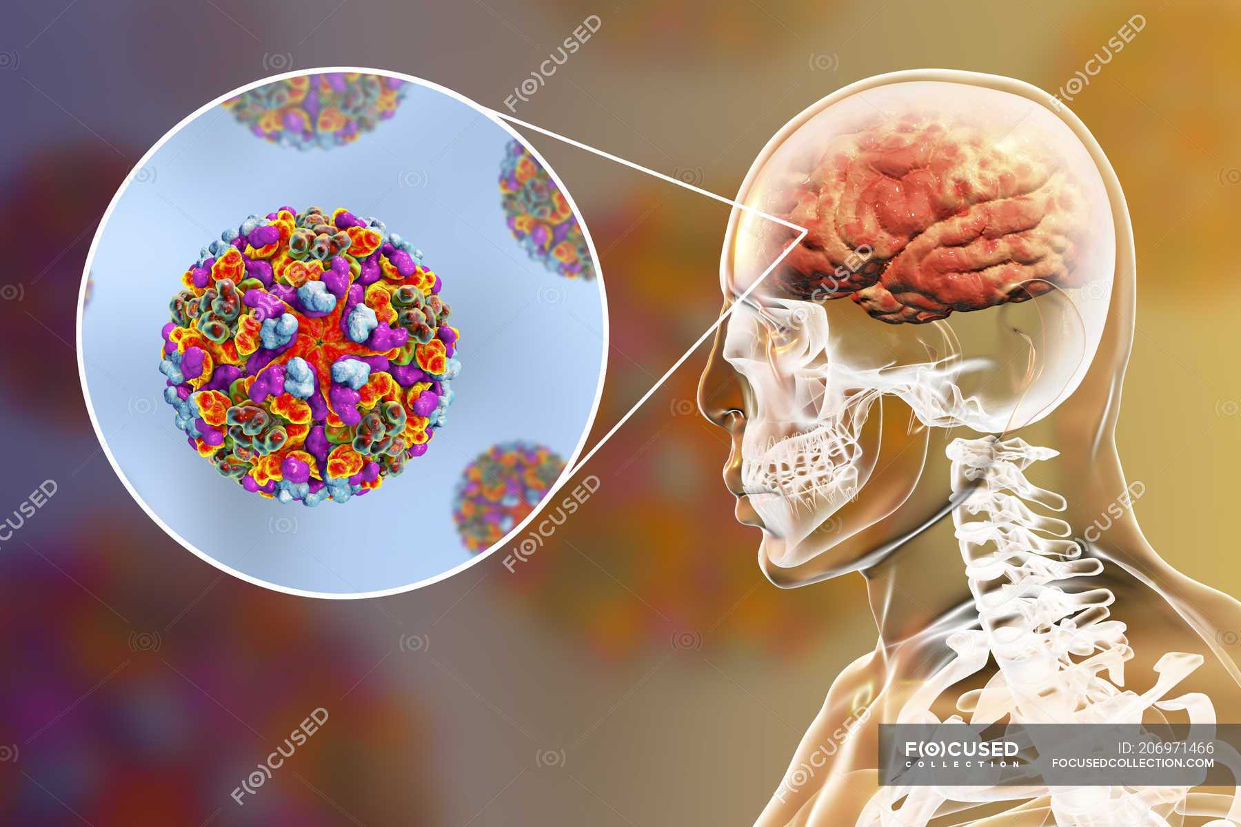 Western equine encephalitis virus infecting human brain, digital ...