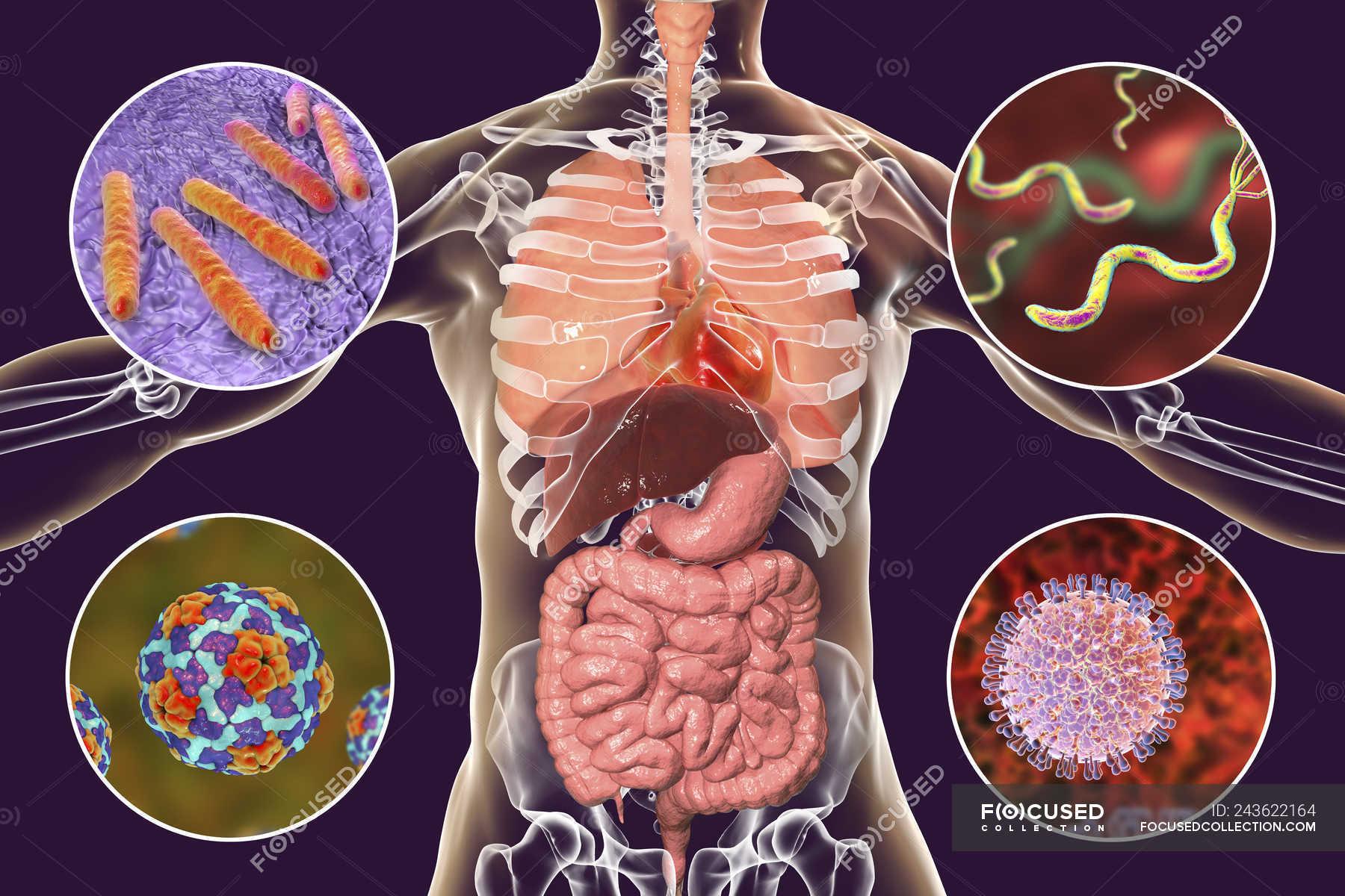 Laryngeal Tuberculosis Mimicking Supraglottic Carcinoma: A