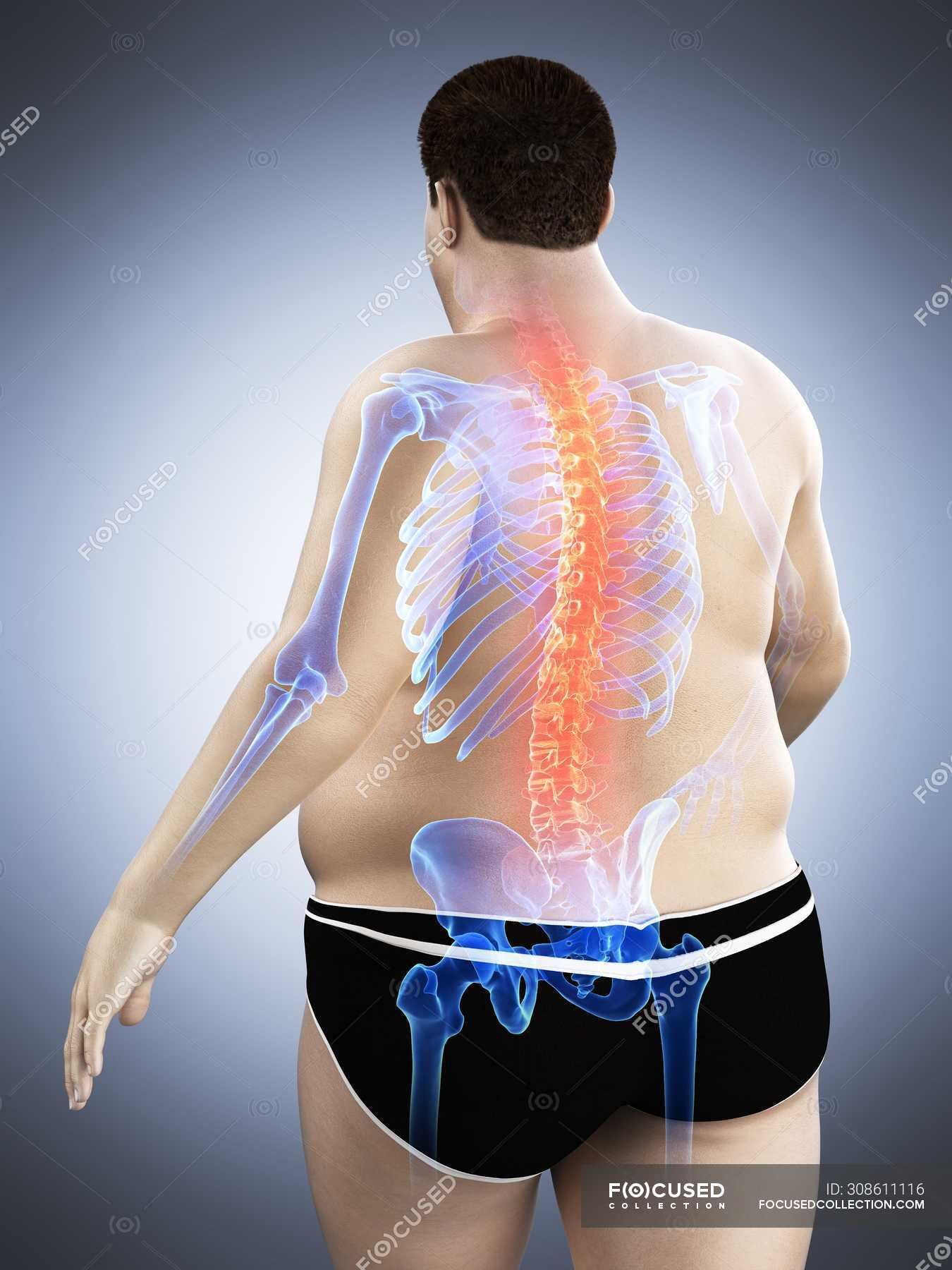 Obese Male Body With Back Pain Digital Illustration Intervertebral Discs Conceptual Stock Photo 308611116