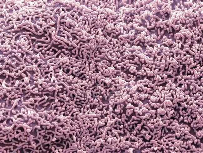 Micrógrafo electrónico de barrido coloreado (SEM) de la superficie de una célula epitelial escamosa del uréter . - foto de stock
