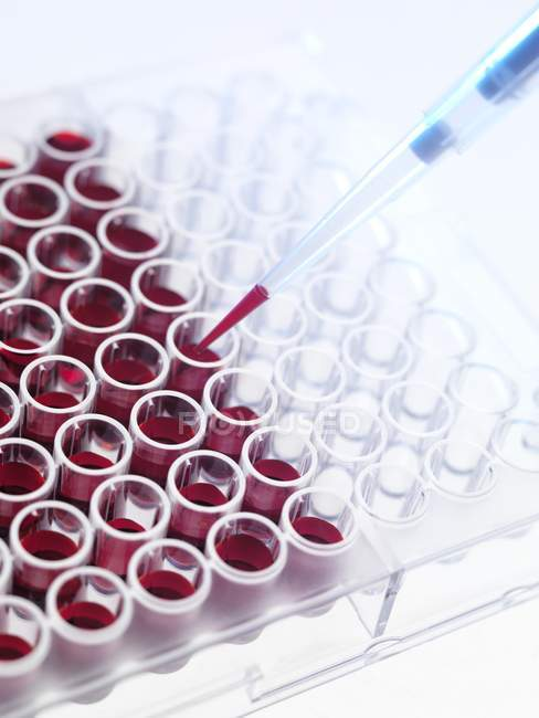 Blood samples in test tubes — Stock Photo