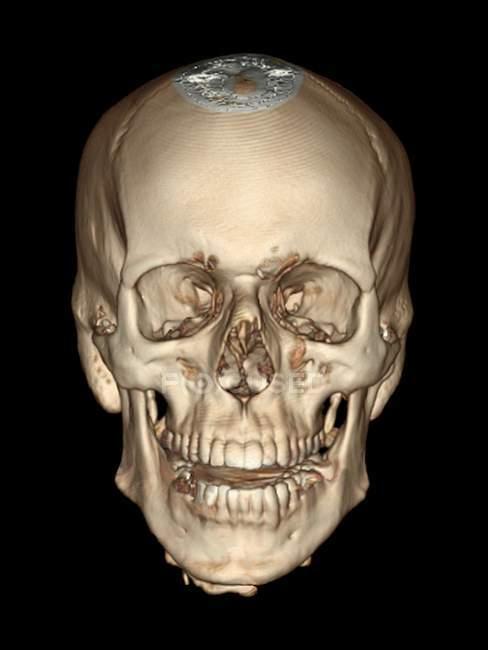 Normale Schädel Anatomie junger Erwachsener — Stockfoto | #160165476