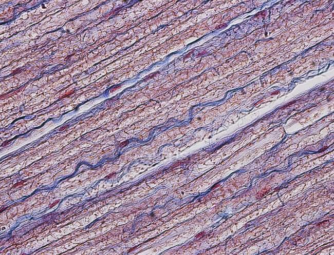 Подовжньому зрізу нерв людини сідничної l — стокове фото