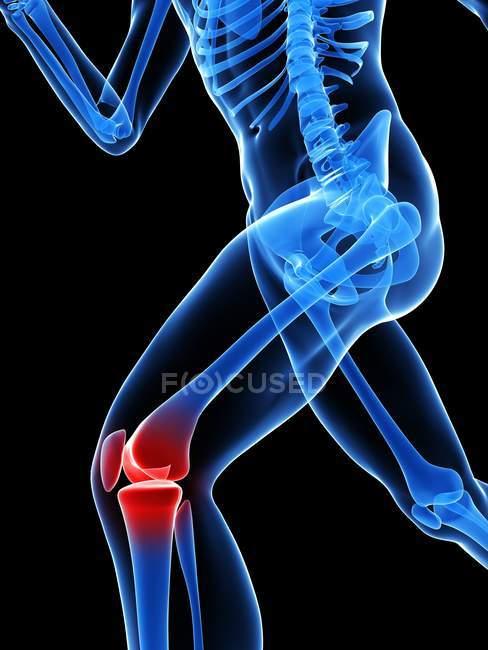 Біль локалізується в колінного суглоба — стокове фото