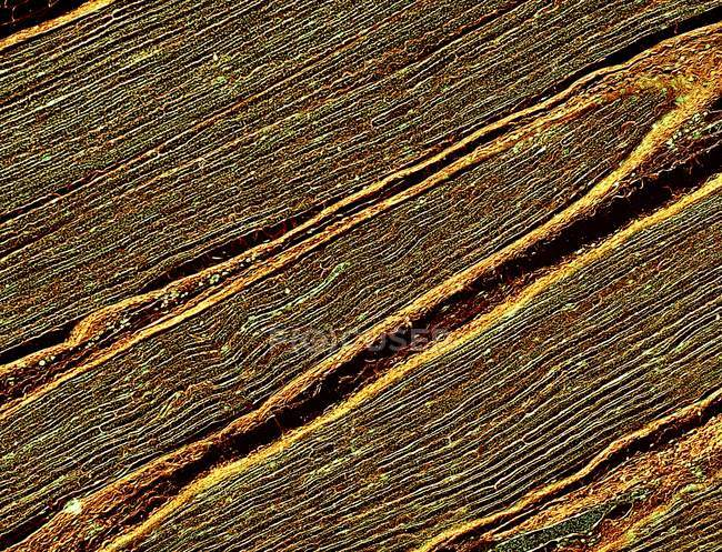 Coupe longitudinale d'un nerf humaine l sciatique — Photo de stock