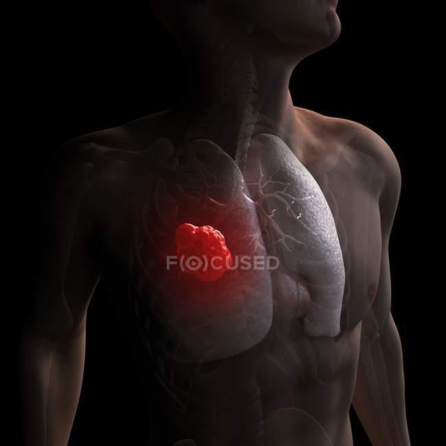 Pathologie du cancer du poumon — Photo de stock