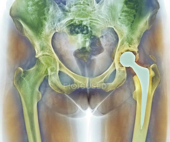 Sustitución total de cadera - foto de stock