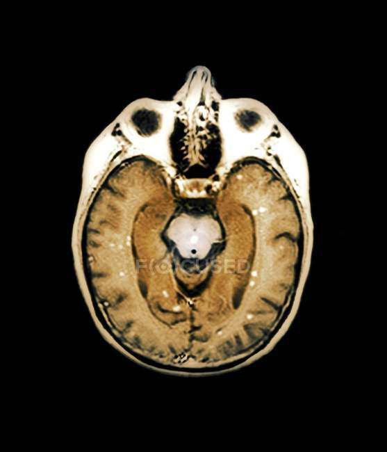 Вторинний мозку рак — стокове фото