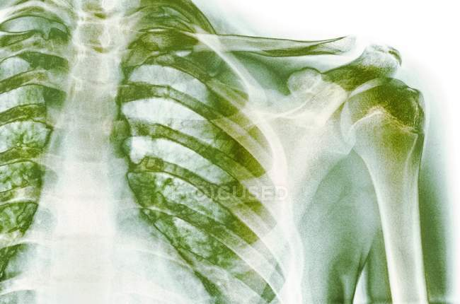 Structural anatomy of normal shoulder — Stock Photo