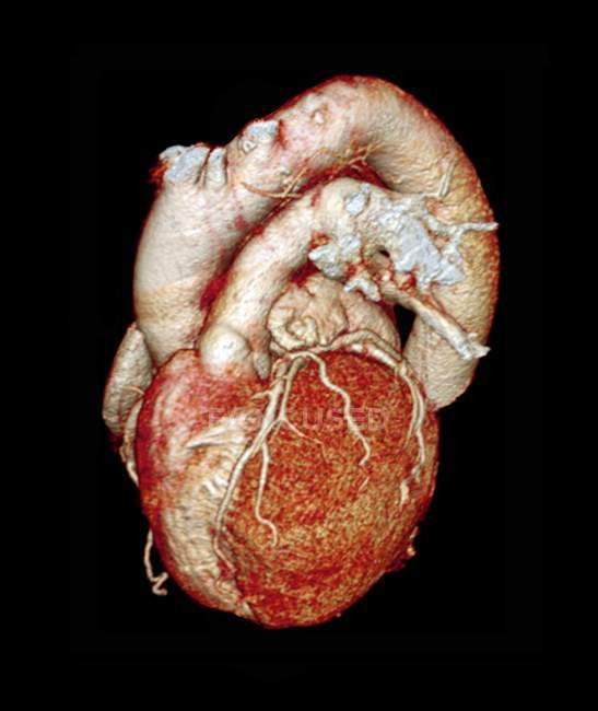 Anatomie du coeur normal — Photo de stock