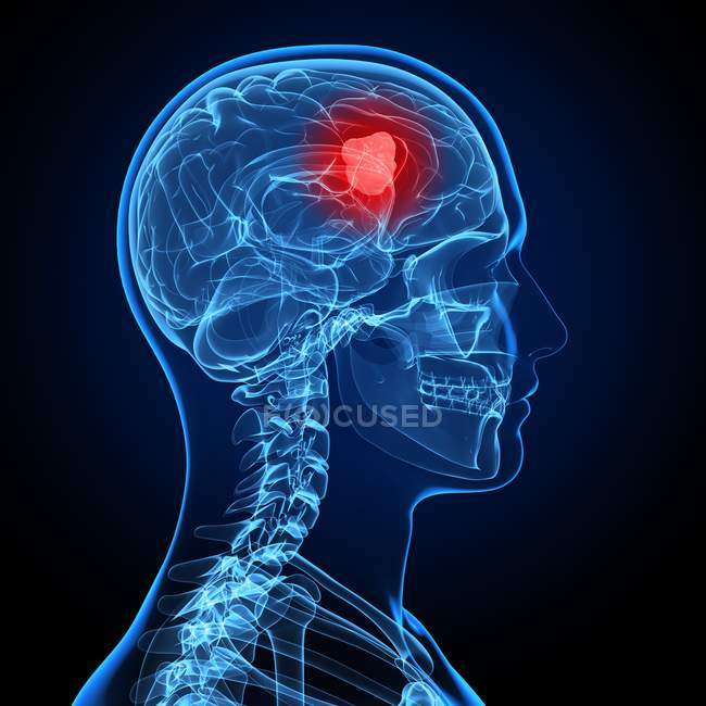 Rendu visuel de cancer du cerveau — Photo de stock