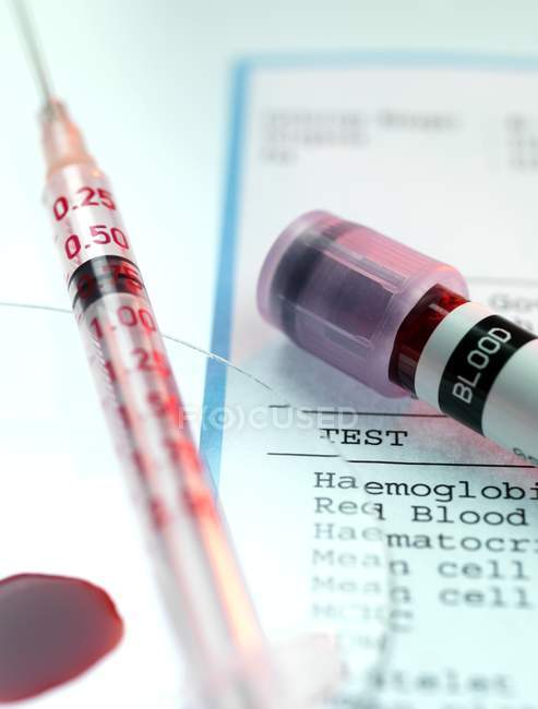 Blood test kit and and analysis results — Stock Photo